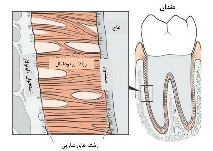 شکل- بافتهای رشته ای اطراف ریشه دندان رباط پریودنتال نام دارد (نواحی نارنجی رنگ در شکل بالا) که دندان را متصل به استخوان نگه میدارد.