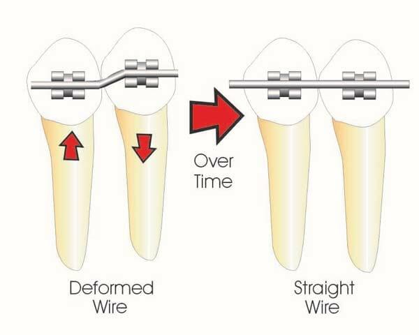 شکل- به علت تمایل سیم ارتودنسی به صاف شدن، دندان همراه با سیم کشیده شده و همراستا به دندانهای دیگر قرار میگیرد.