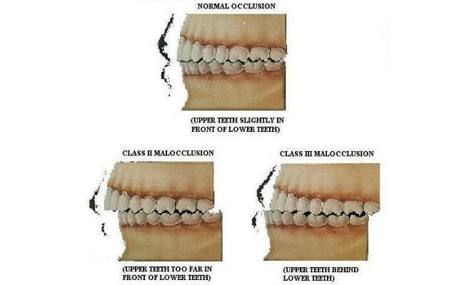مالاکلوژن چیست؟ بی نظمی یا نامرتبی دندان