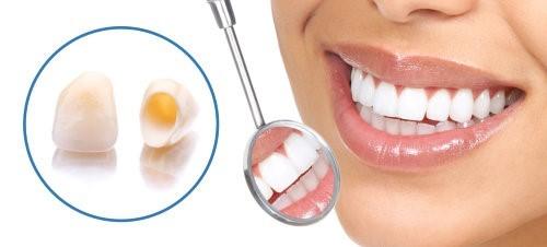 براکت ارتودنسی، روکش یا ونیر دندان؟