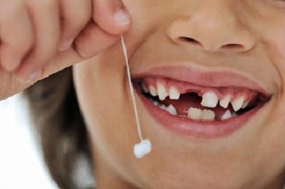 لق شدن و افتادن دندان شیری