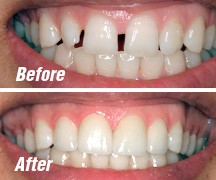 ارتودنسی و دندانپزشکی زیبایی