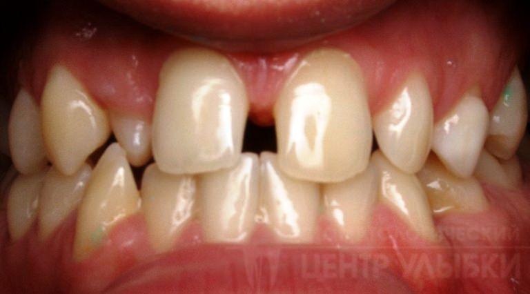 فاصله زیاد بین دندانها