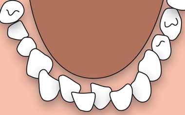 شلوغی و بههمریختگی دندانها