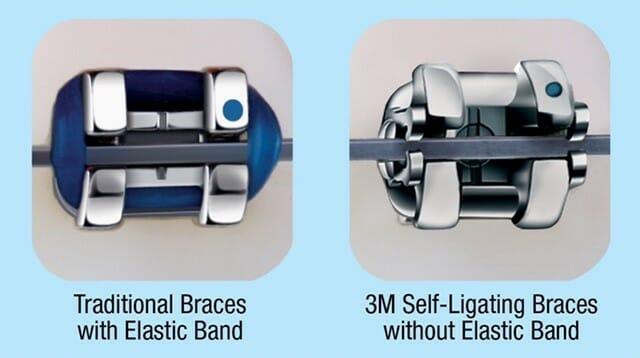 شکل- مقایسه نگین براکت معمولی در سمت چپ و نگین براکت خو لیگاچور در سمت راست. همانطور که میبینید در براکت معمولی سمت چپ، از حلقه کشی آبی رنگ برای نگه داشتن سیم ارتودنسی به نگین براکت، استفاده شده است در حالی که در براکت خود لیگاچور از هیچ چیز اضافه ای استفاده نشده بلکه خود طراحی نگین براکت به صورتی است که سیم را در خود نگه میدارد.