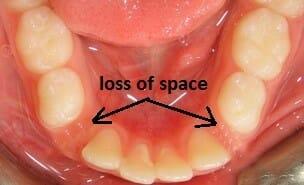 شکل- از دست دادن زود هنگام دندان شیری و در نیامدن دندان دائمی جایگزین آن باعث شده فضا توسط دندانهای دیگر اشغال شده و از بین برود.
