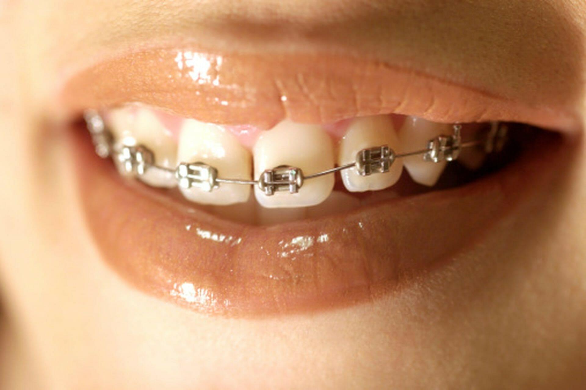 خشکی دهان و لب در طی درمان ارتودنسی