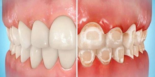 پوسیدگی دندان در طول درمان ارتودنسی