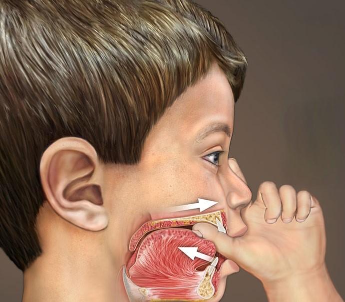 مشکل دندان خرگوشی و درمان ارتودنسی