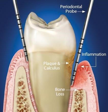 لق شدن دندان و درمان ارتودنسی