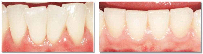 تراشیدن دندان (استریپ دندان) در ارتودنسی