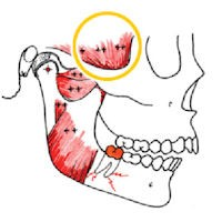 تاثیر مال اکلوژن بر دندانها