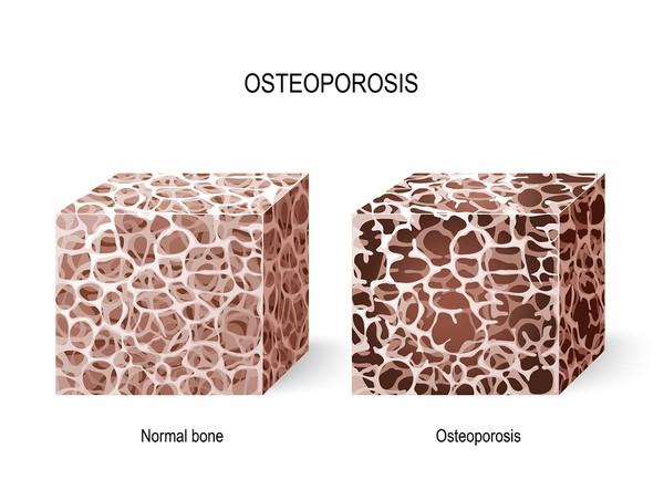 پوکی استخوان و درمان ارتودنسی
