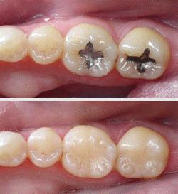 هنر دندانپزشکی زیبایی