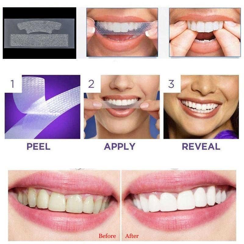 سفید کردن دندان در منزل یا هوم بلیچینگ
