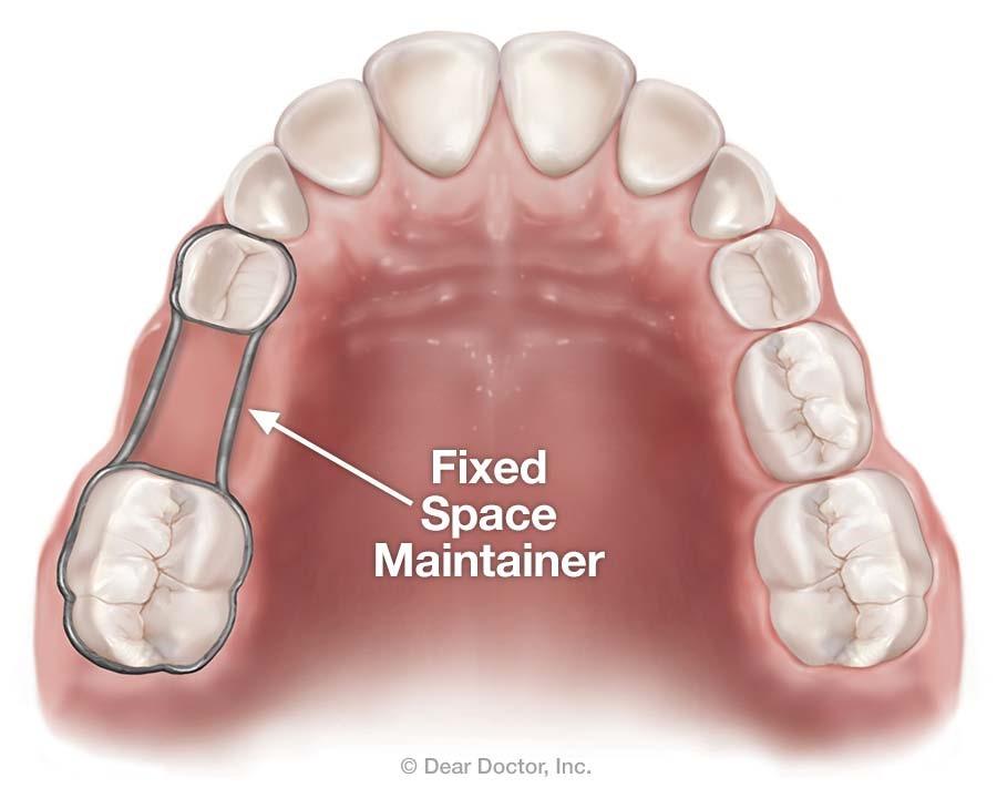 از دست رفتن دندان و فضا نگهدارها