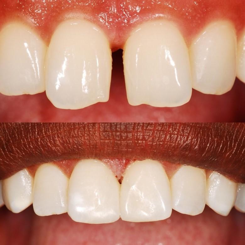باندینگ یا تغییر شکل دندان ها با کمک تراش مینای دندان