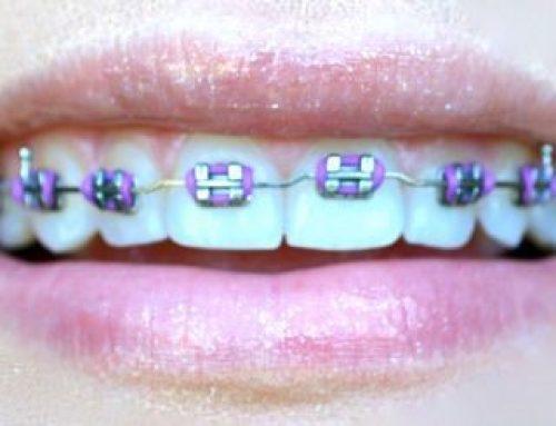 چگونه دندان ها را با وجود براکت ها سفید کنیم؟