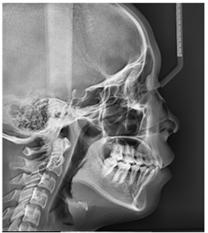 تصاویر رادیوگرافی در ارتودنسی