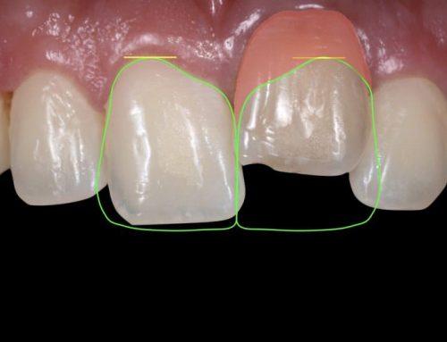 انکیلوز دندان یا دندان فک جوش