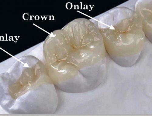 اینله، آنله، روکش دندان، یا پر کردن؛ کدامیک بهتر است؟