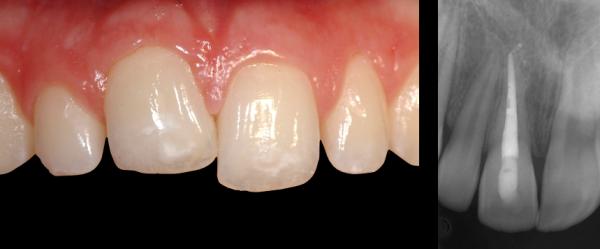دندان فک جوش یا انکیلوز