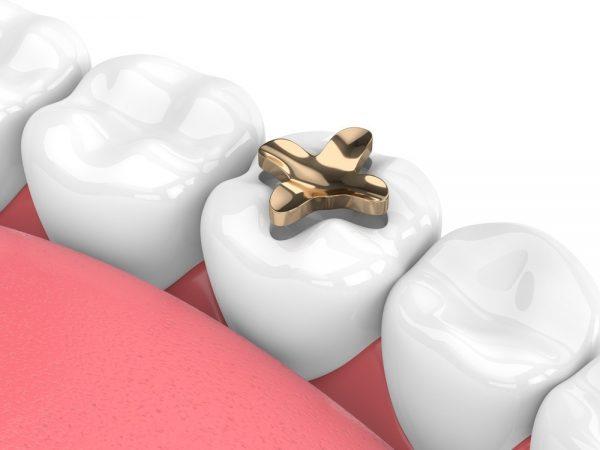 اینله، آنله، روکش دندان، یا پر کردن