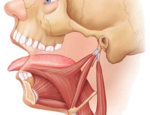 تانگ تراست یا فشار زبان پشت دندان های جلو