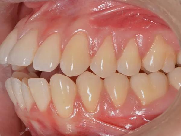 تانگ تراست فشار زبان به پشت دندانها