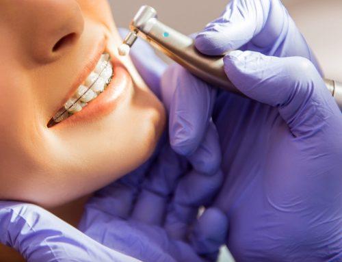 مزایای پولیش کردن دندان ها و اهمیت آن در ارتودنسی