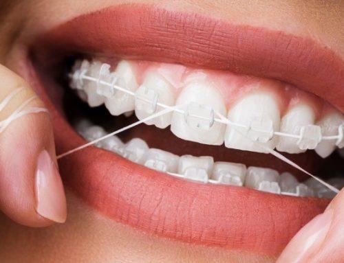 اهمیت و نحوه نخ دندان کشیدن در درمان ارتودنسی