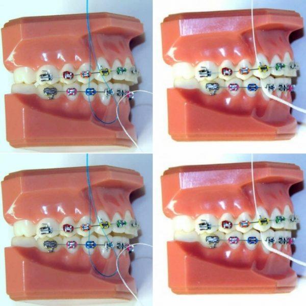 نخ دندان کشیدن در ارتودنسی