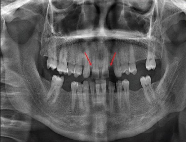 دندان درنیاوردن کودکان و نوزادان