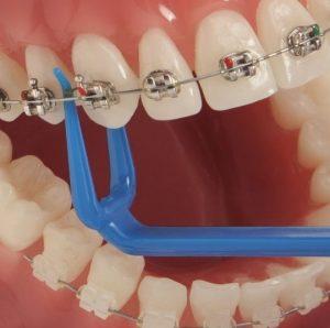 نخ دندان کشیدن با براکت ارتودنسی