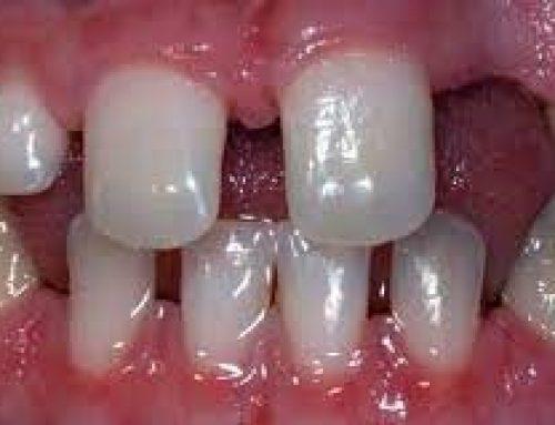 فقدان مادرزادی دندان چیست؟